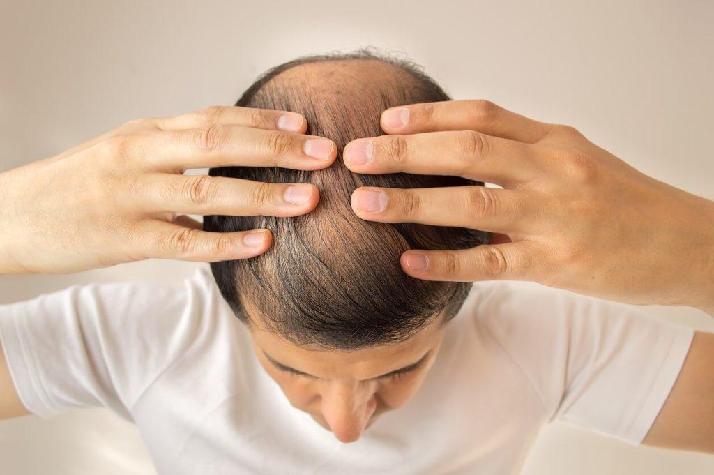 Calvitie : comment faire repousser les cheveux rapidement ?