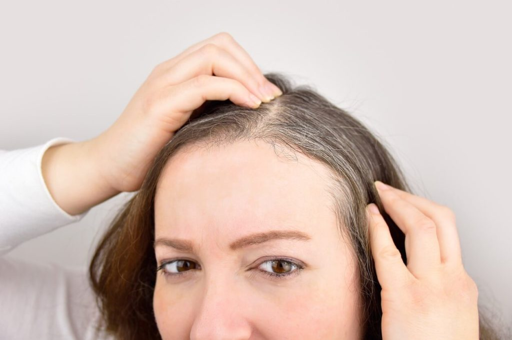 Canitie: le stress donne t-il vraiment des cheveux blancs?