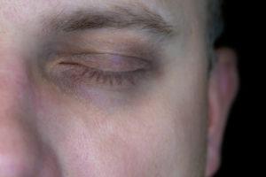 Cernes : comment enlever les poches sous les yeux ?