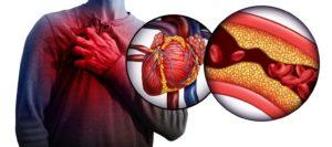 Cholestérol : comment le réduire naturellement ?