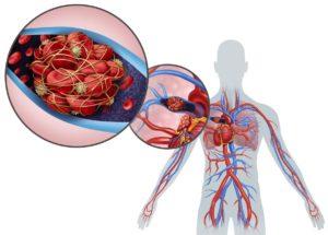 Comment éviter l'embolie pulmonaire?