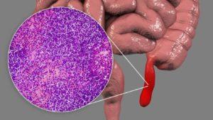 Chronic appendicitis: what natural treatment?