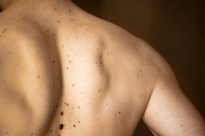 Skin cancer: symptoms and causes?