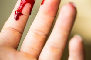Comment vaincre la peur de la vue du sang et des blessures ?