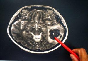 Tumeur au cerveau : quelles solutions pour se soigner ?