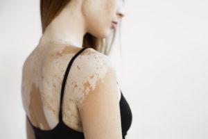 Vitiligo: how to treat yourself naturally?