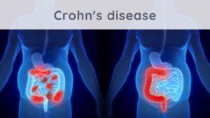 Crohn's disease: what solutions?