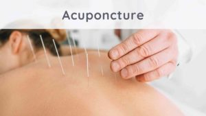 Acupuncture : how does it work?