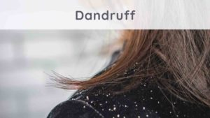 Dandruff: how to get rid of it naturally?