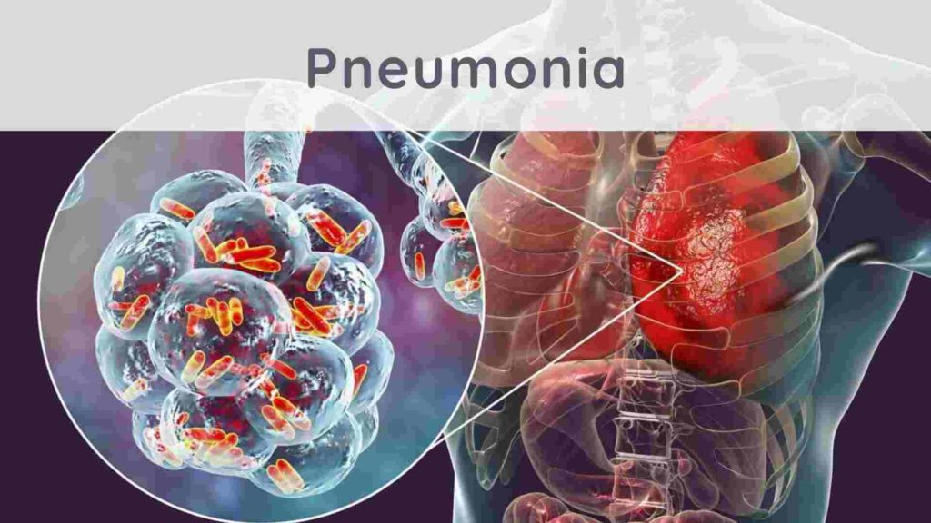 Pneumonia: how to treat it naturally?